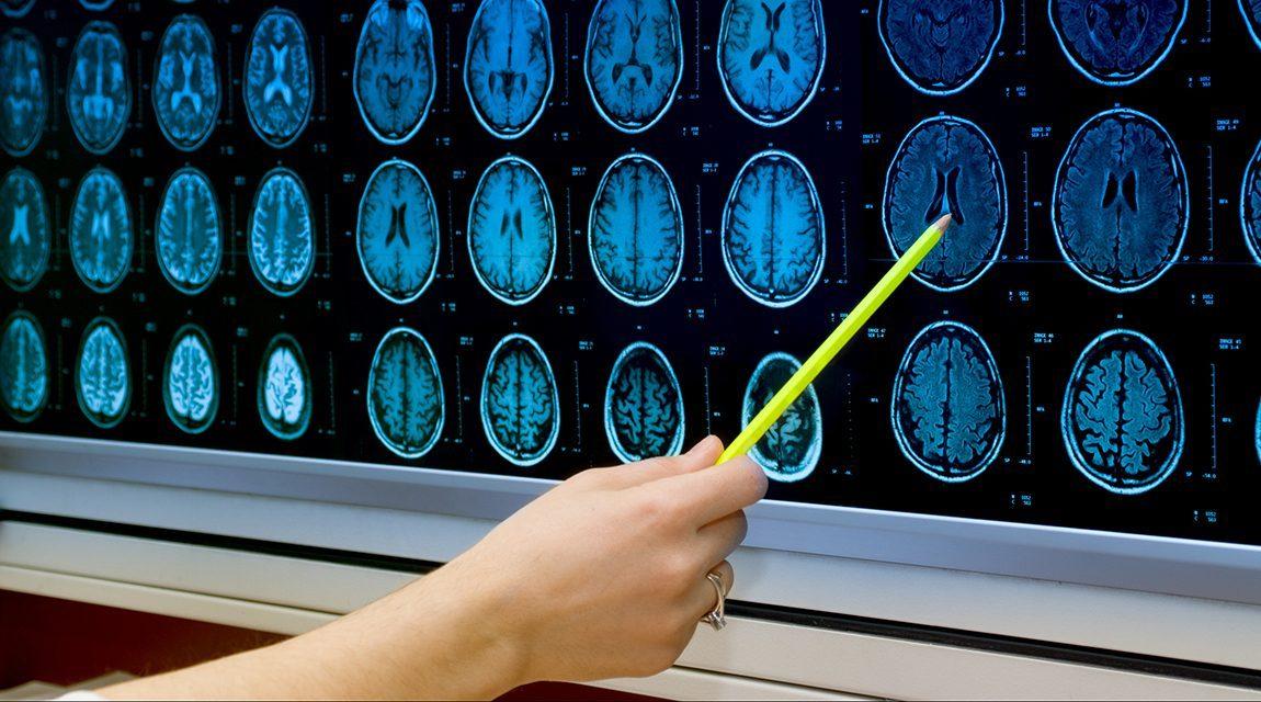 Newport Academy Mental Health Resources Teen Social Media Addiction Impacts Adolescent Brain