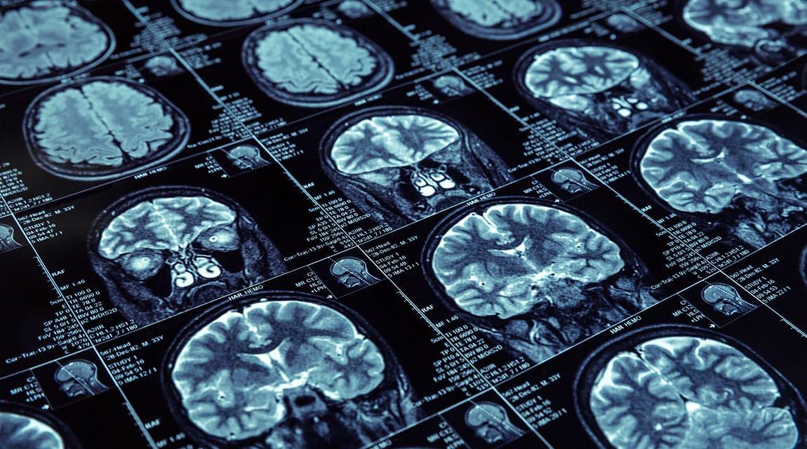 PSYCH TODAY: Brain_Scans_Newport_Academy